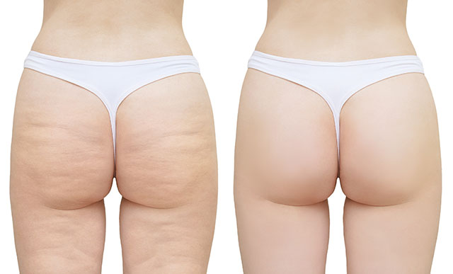 Cellulite And The Truth About Getting Rid Of It Fab Fit Free